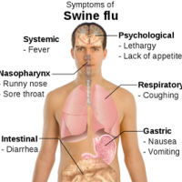 Symptoms Of Swine Flu (Wikipedia)