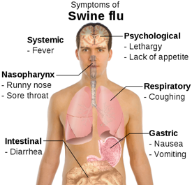 Symptoms Of Swine Flu (Wikipedia)